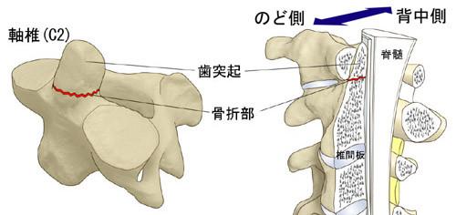 看護 ハロー ベスト 脊髄損傷に関するQ&A