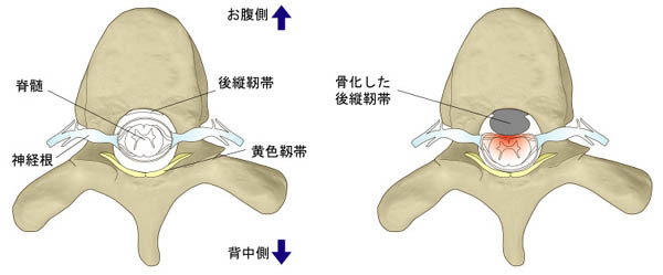 胸椎後縦靭帯骨化症