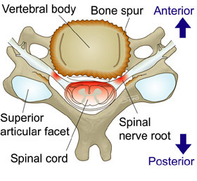 cervical spondylisis