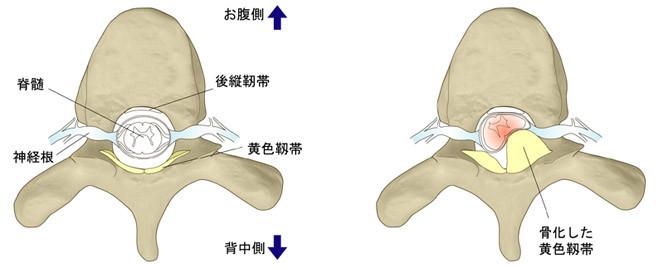 黄色靱帯骨化症