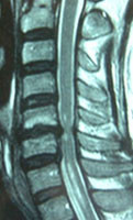 脊椎インスツールメンテーション