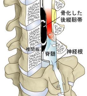 頚椎OPLL