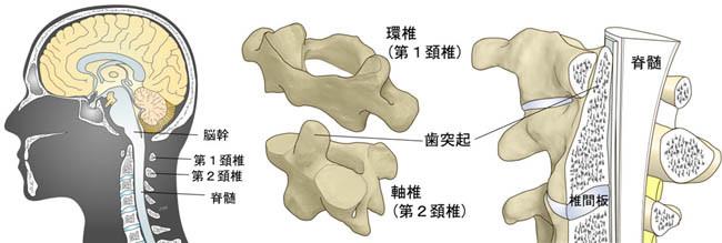 外傷性環軸椎脱臼症