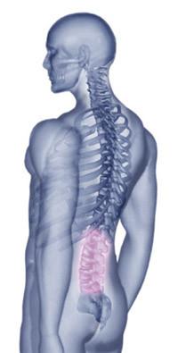 腰椎の病気