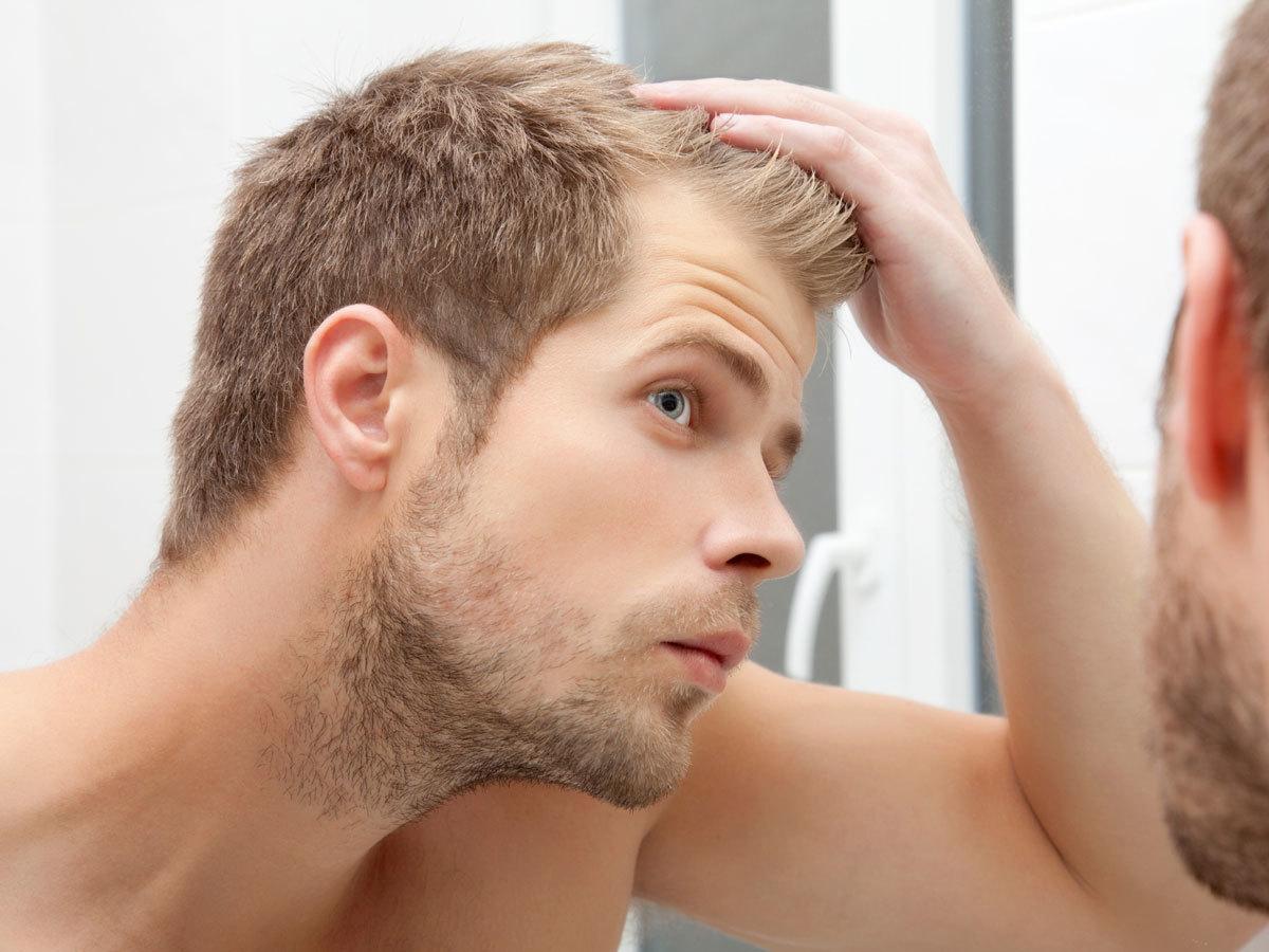なぜ髪の毛が無くなる?禿げるメカニズムとは