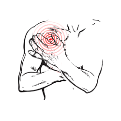 Physiotherapie Am Schlump – Behandlung bei Schultergelenksbeschwerden