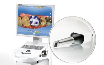 Modernste CAD/CAM Technik beim Zahnarzt