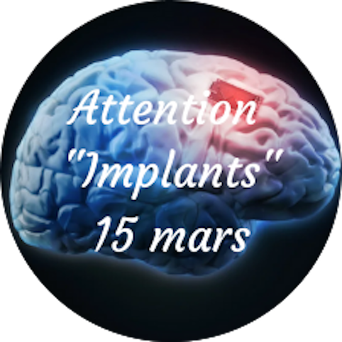 "Attention ""Les Implants"" Lundi 15 Mars"