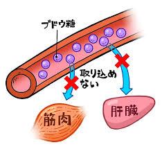 ブドウ糖が取り込めない細胞
