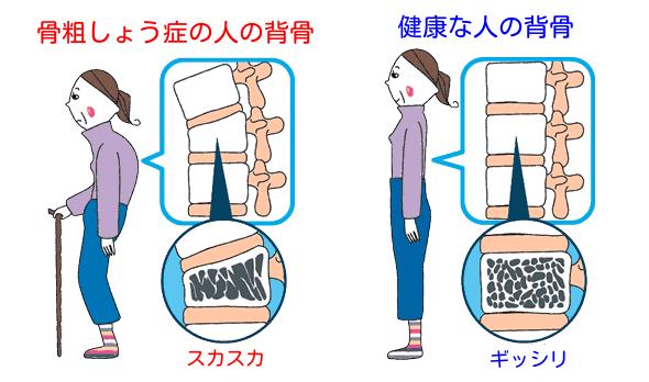 骨粗しょう症の人の背骨と健康な人の背骨