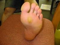 足裏のタコ・マメ