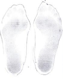 足裏の状態