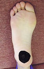 足の痛い部分