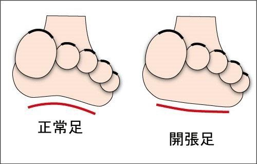開張足の原因と対策 - 足底筋膜炎・外反母趾・扁平足インソール