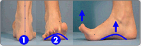 BarefootScienceインソールを使用後の足