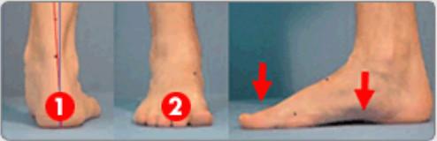 BarefootScienceインソールを使用前の足
