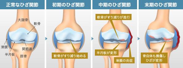 症例 膝痛2