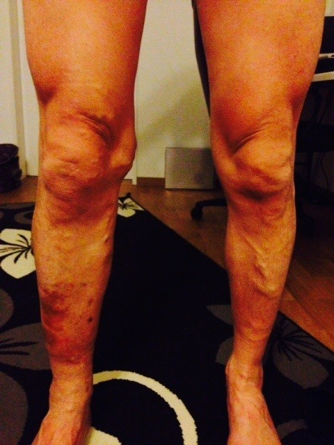 September 2014 Ausgangslage: 25 Jahre brennende und  schmerzhafte Krampfadern mit Juckreiz. Die Flecken sind feuerrot und heiss. Beginn vor der Impulsierung