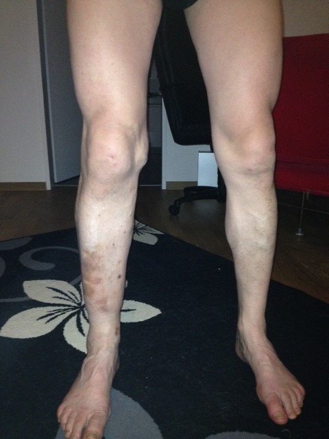 Mai 2015  Impulsierung nach 8 Monaten - die Schmerzen und die Schwellungen sind zurückgegangen