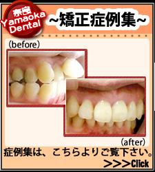 奈良のやまおか歯科矯正症例集