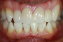 オールセラミックで歯並び治療
