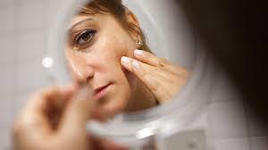Bei einem Seborrhoischen Ekzem handelt es sich um eine chronische entzündliche, scharf begrenzte, schuppende Hautveränderung. Die betroffenen Stellen befinden sich bevorzugt an der Kopfhaut und im Gesicht. Sie können sich aber auch im oberen Brust-Bereich