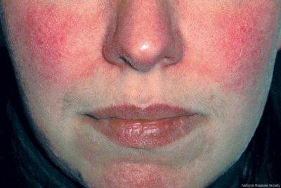 Hautkrankheiten sind weit verbreitet: Rosacea, Neurodermitis, Schuppenflechte, Weissfleckenkrankheit, Akne, dyshidrotisches Ekzem und viele mehr. Betroffene leiden an quälendem Juckreiz, Schmerzen und nicht zuletzt belastenden Entstellungen.