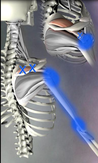 棘上筋 肩の痛み 肘の痛み