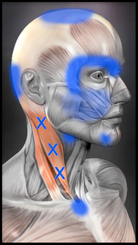 胸鎖乳突筋 偏頭痛 トリガーポイント