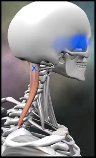 頭痛 頭半棘筋 トリガーポイント