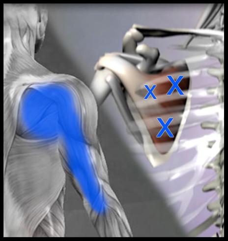 肩甲挙筋トリガーポイント