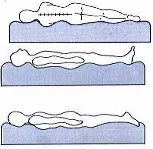 Auflagefläche im Wasserbett: Der ganze Körper sinkt in die Matratze - keine punktuellen Auflagepunkte!