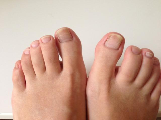 足の指の話