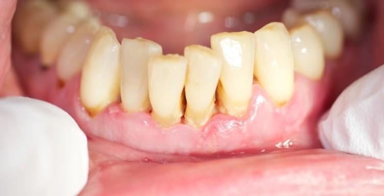 Abb. 1: Patientenfall E.A. (w), 52 J., am 05. 09. 2014, Schmerzen vor allem UK-Front, Zahn 31 und 32 stark  beweglich