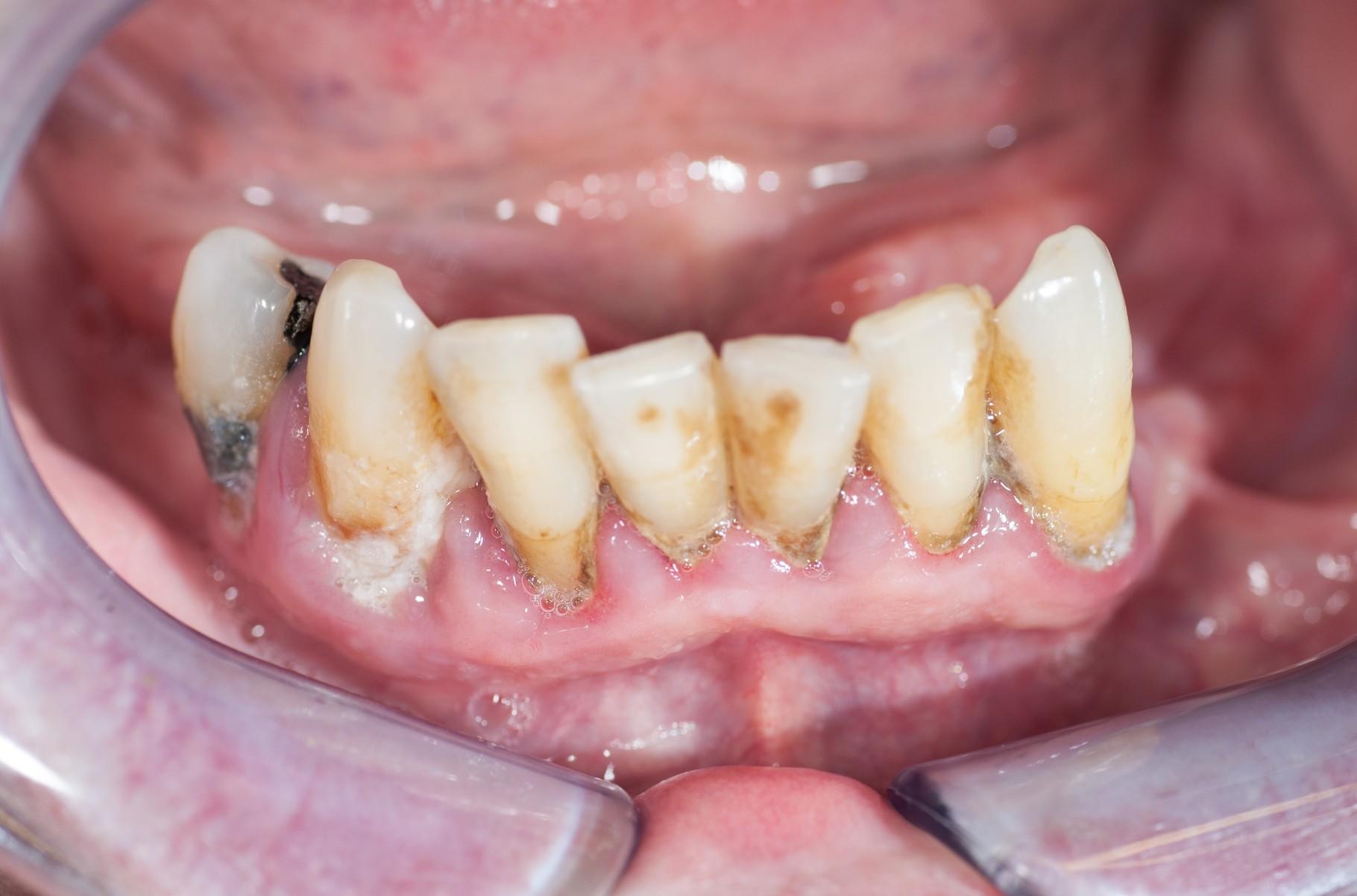 Abb. 2: 10.12.2014 vor PZR/SRP; Blutung auf Sondieren an allen Zähnen, BOP an 4 Stellen p. Zahn, Lockerungsgrad 2-3