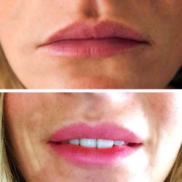 Voor- en na foto bij hyaluronzuurbehandeling.