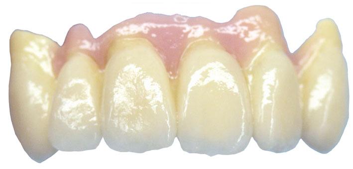 Frontzahn Zirkonoxidbrücke mit Zahnfleischplastic