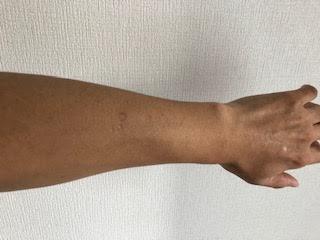 筆者の前腕背側にある灸痕