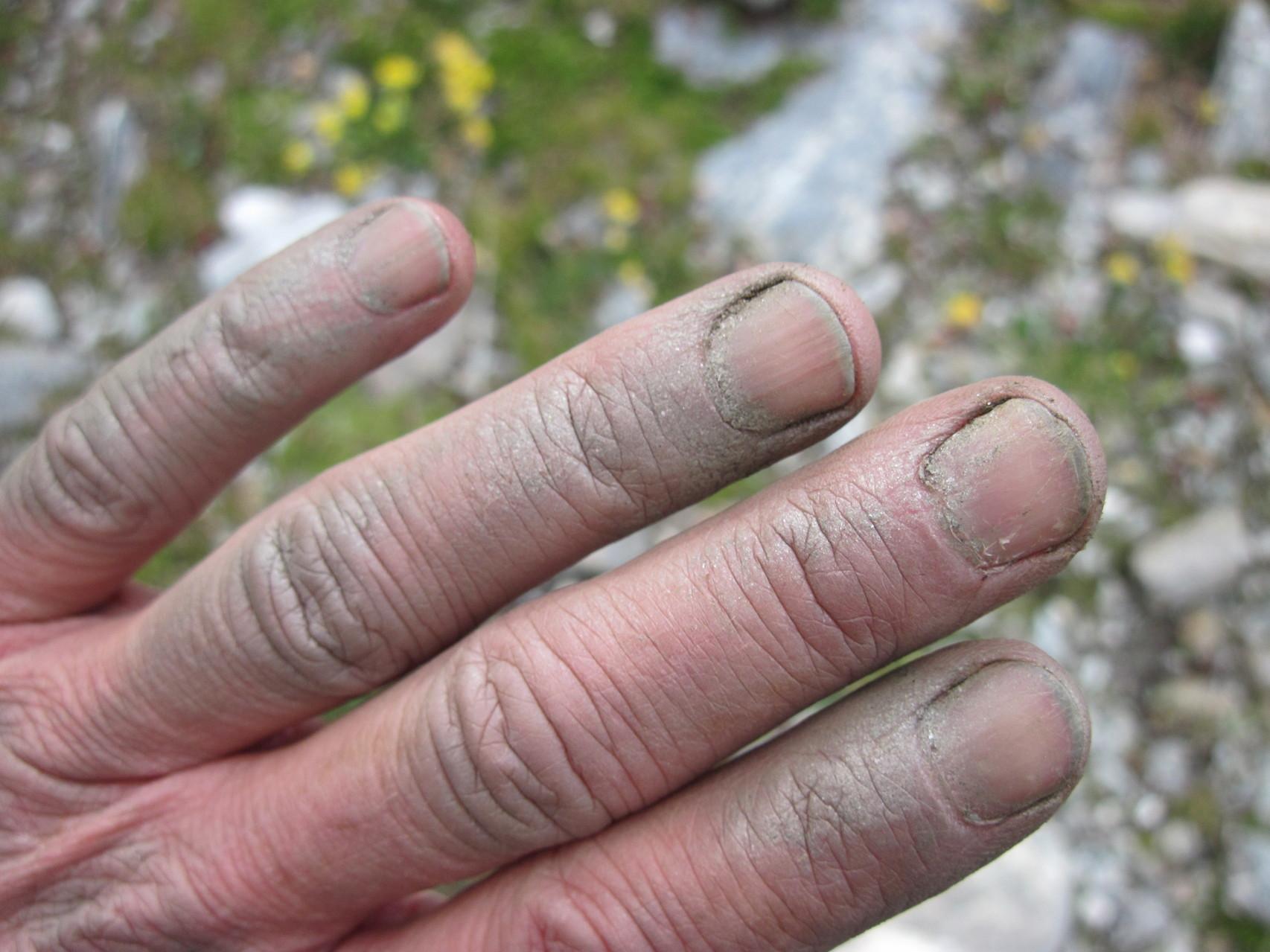 Kalte, schmutzige und zerkratzte Finger