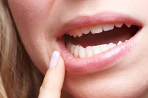 Zahnfleischbluten während der Schwangerschaft
