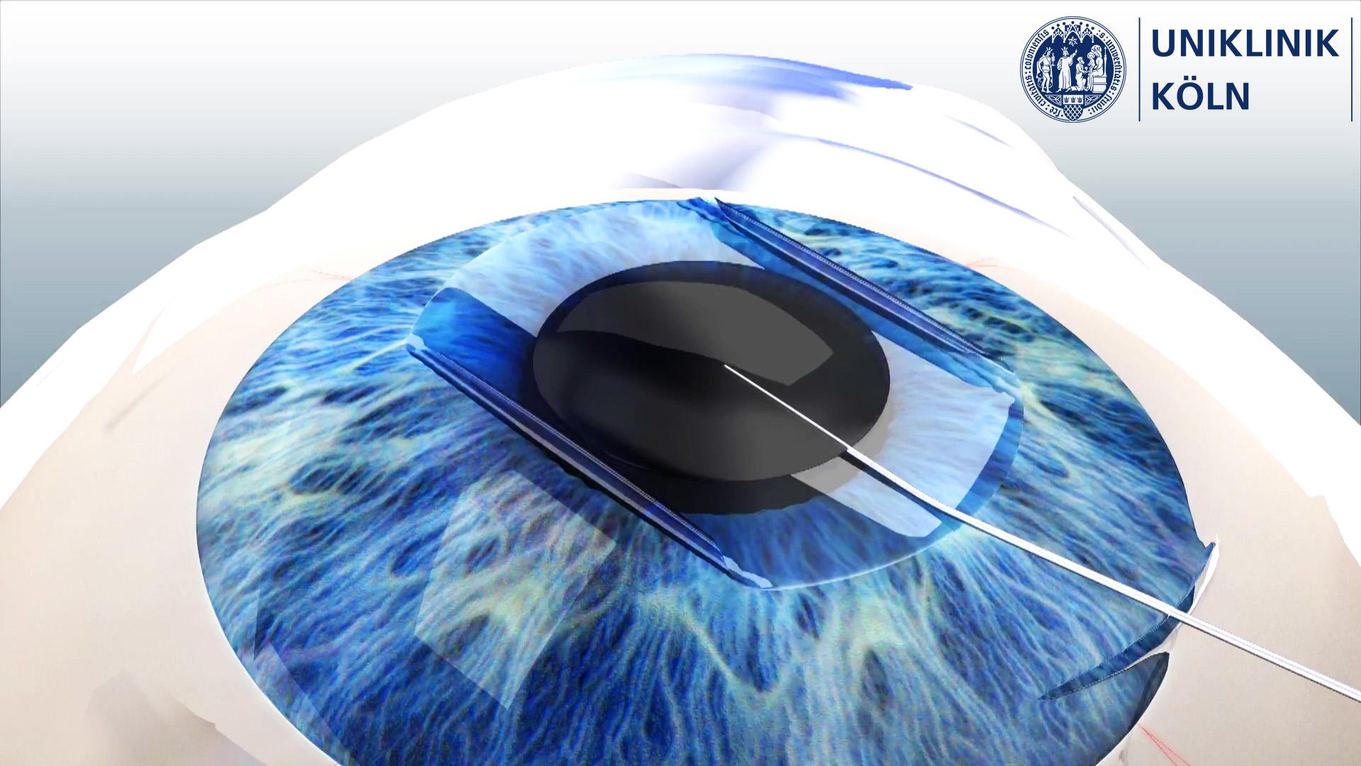 Einzelbild Augen OP aus medizinischer Animation