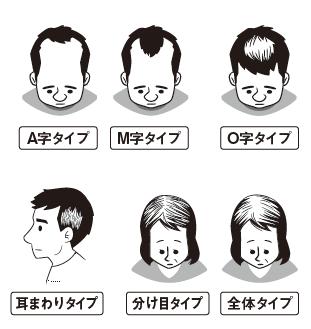 辻敦哉著『世界一簡単な髪が増える方法』より抜粋イラスト タイプ別薄毛の予防法