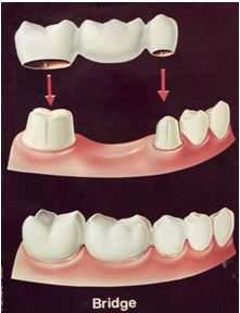 Dental bridge and crown covering dental implant