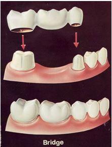 Dental bridge and crown covering dental implant