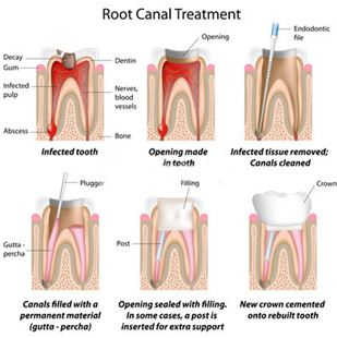 Endodontics treatments