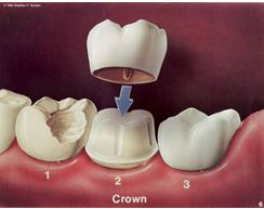 Dental bridge and crown applied in Boone