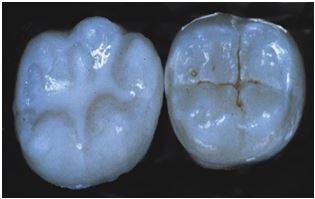 tooth sealant