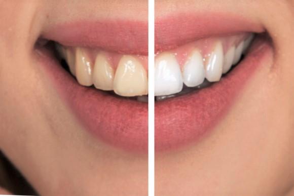 Zahnarztpraxis Dr.Gune in Dallgow-Döberitz -  Zahnreinigung