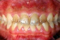 クリーニング前の汚れた歯