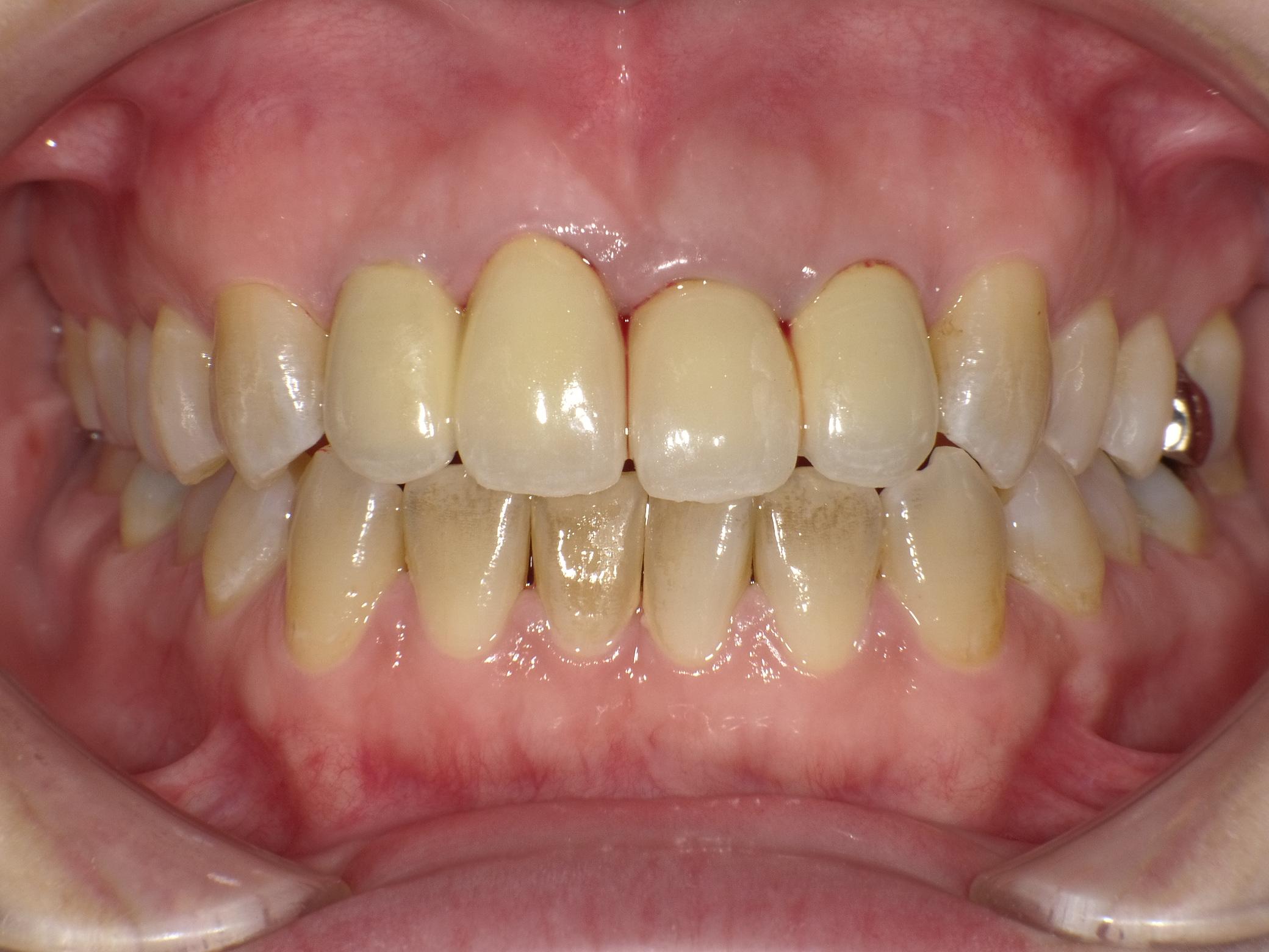 歯並び セラミック